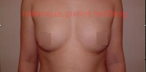 breast a1.jpg