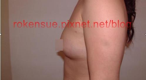 breast a3.jpg