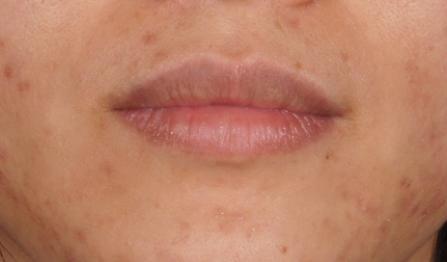 唇3.jpg