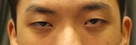 提眼瞼肌1.jpg