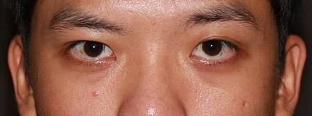 提眼瞼肌2.jpg