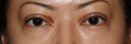 提眼瞼肌4.jpg
