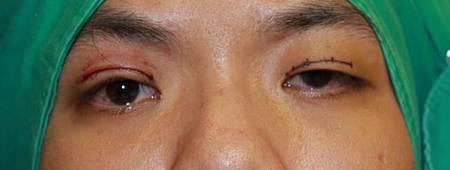 提眼瞼肌.jpg