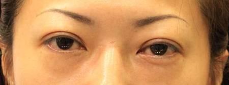 提眼瞼肌3.jpg