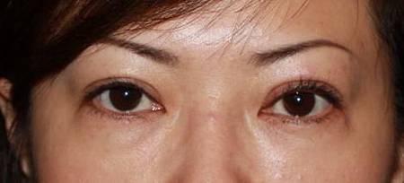 眼瞼肌.jpg