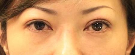 眼瞼肌2.jpg
