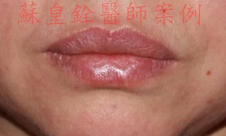 lip16