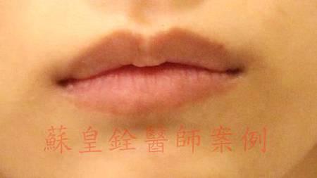 lip00