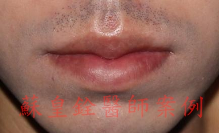 lip22