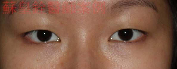 eye8.5
