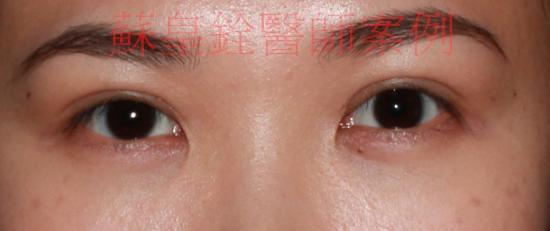 eye19