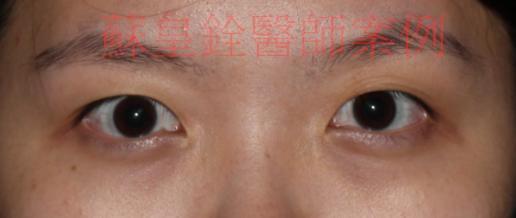 eye20