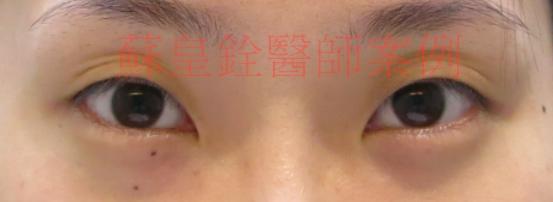 eye26