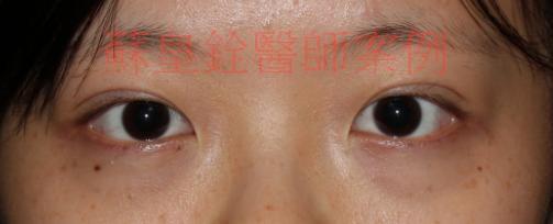 eye41
