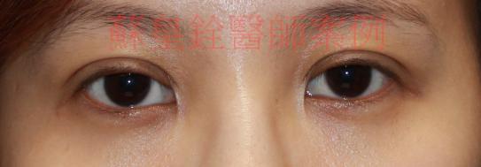 eye38