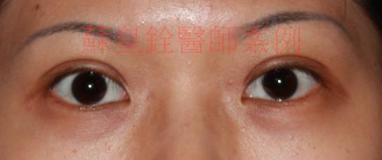eye47