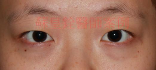 eye42