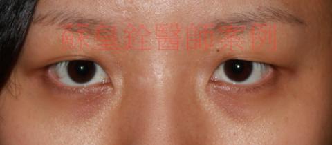 eye40