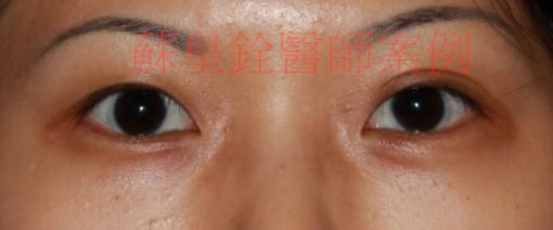 eye48