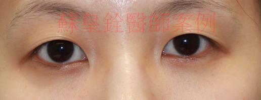 eye37