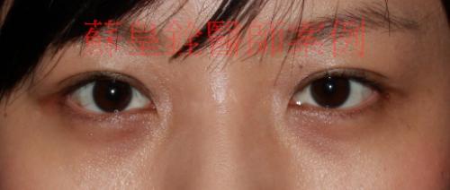 eye39