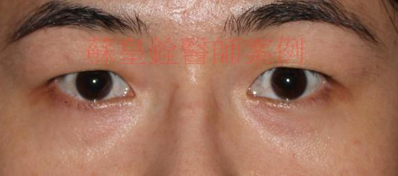 eye53