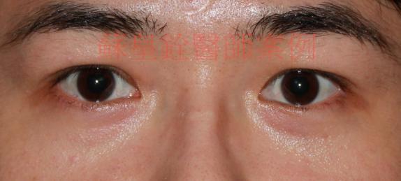 eye54