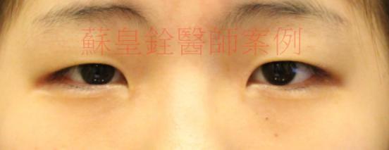 eye60