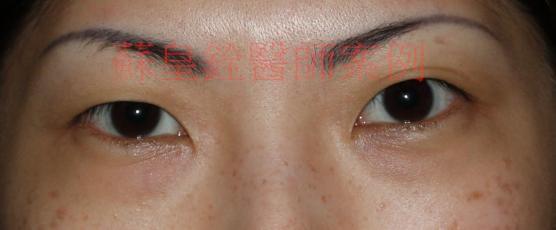 eye58