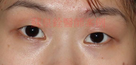eye68