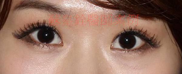 eye67