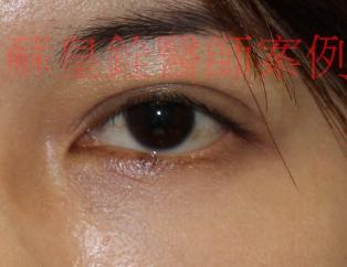 eye10