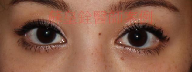 eye17