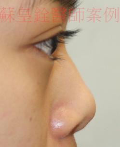 nose6
