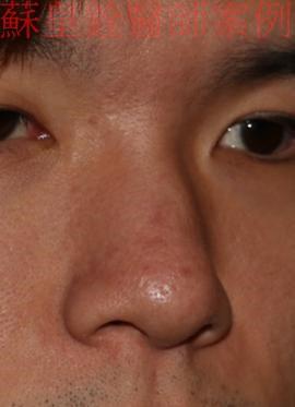 nose5