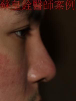 nose8