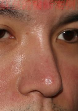 nose9