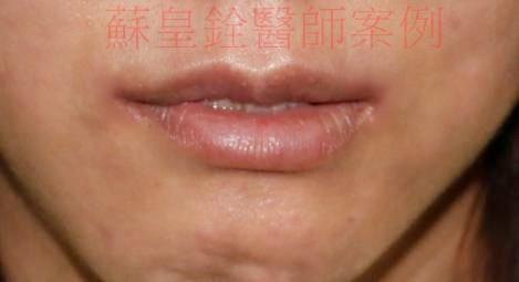 lip2_副本1