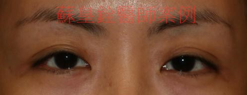 sunken eyelid1