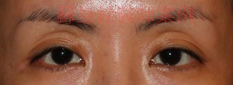 sunken eyelid