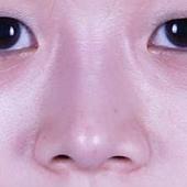 鼻背線.jpg