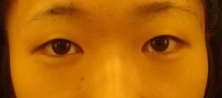 小狗眼5.jpg