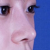 鼻背線3.jpg