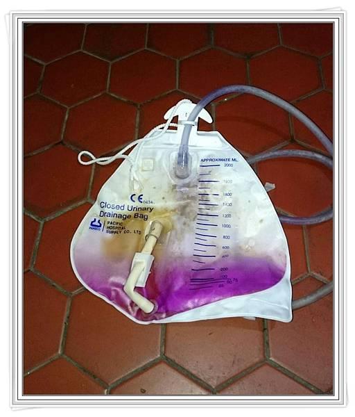紫尿症.jpg