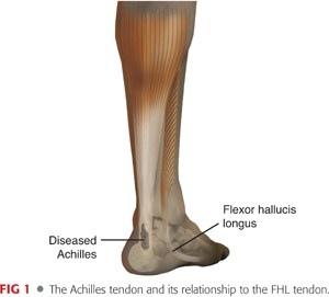FHL Achilles tendons.jpg