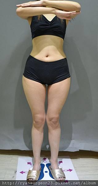 VICKY的整體身形是屬於偏瘦