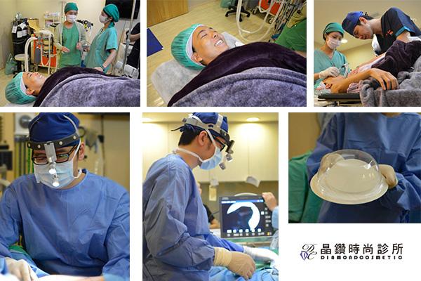 蜜桃絨果凍矽膠隆乳(最新型的第五代果凍矽膠)手術中