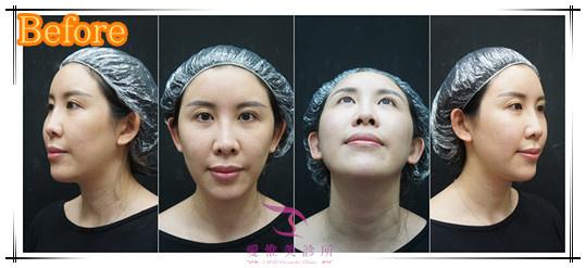 結構式隆鼻手術前照片