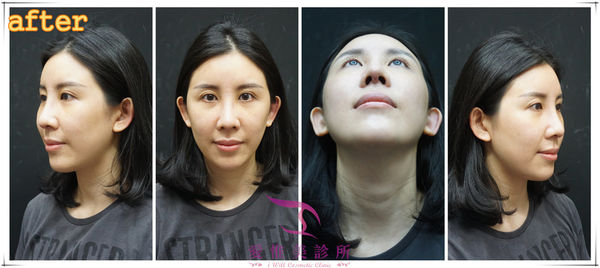 結構式隆鼻術後比對照