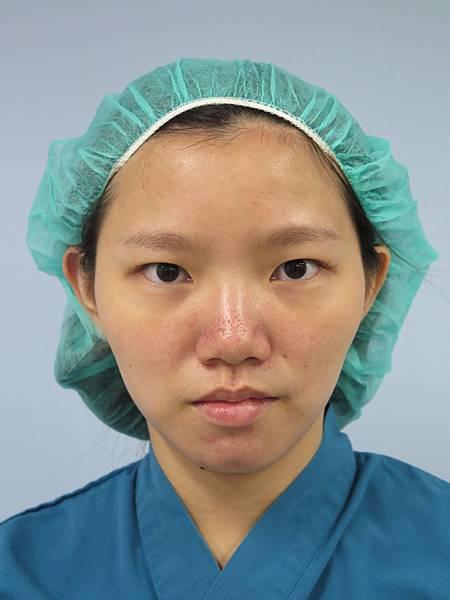 歐式雙眼皮手術過程